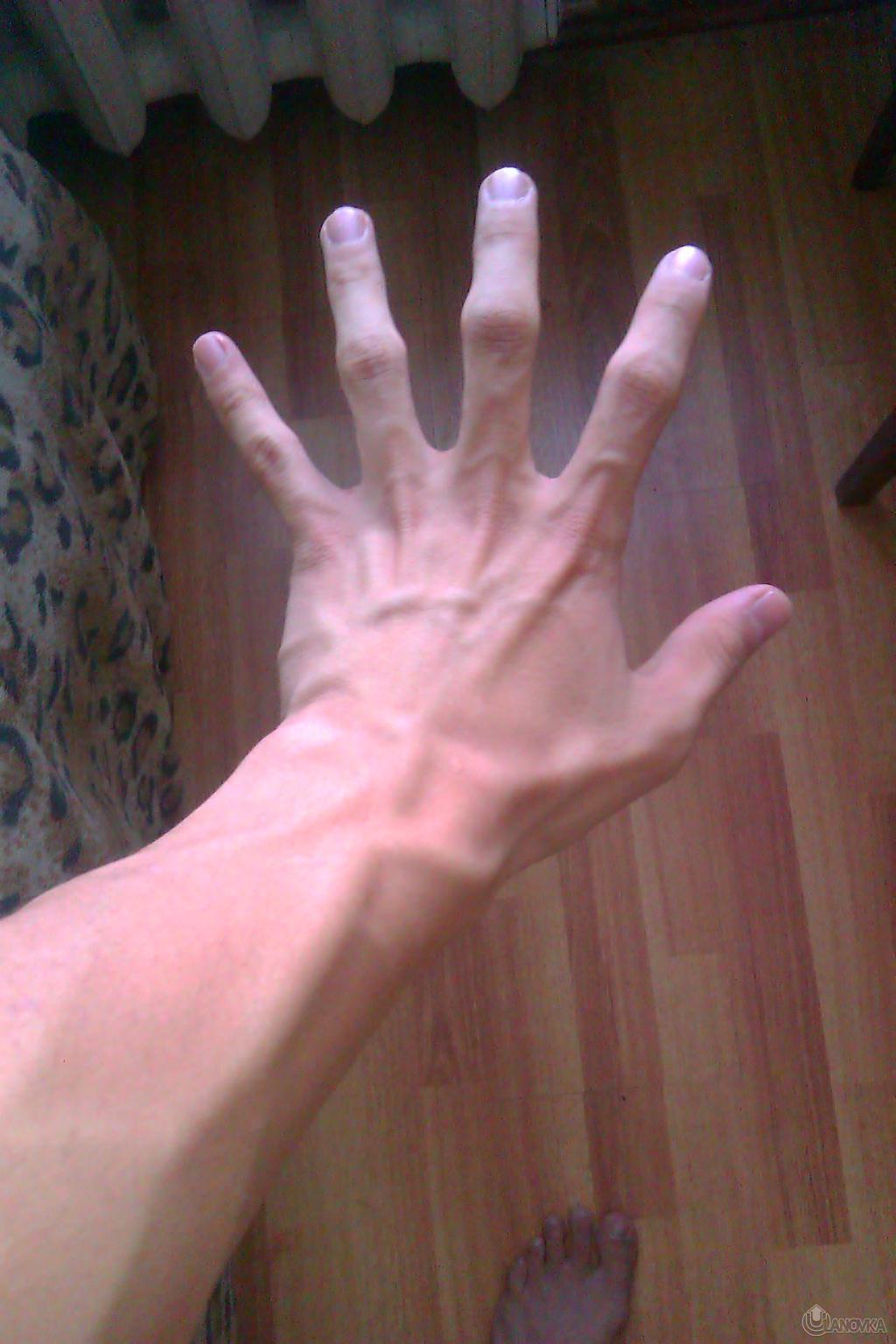 Болят вены на руках - skoraya- 3 ru